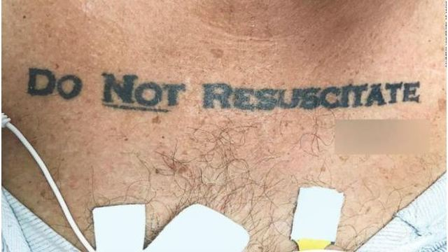 Patient's 'DO NOT RESUSCITATE' tattoo leaves doctors with dilemma